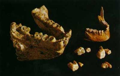 A Gigantopithecus jaw and molars compared to a human jaw and molars!
